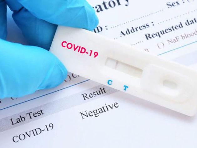 Резидент Академпарка наладил производство экспресс-тестов на коронавирус